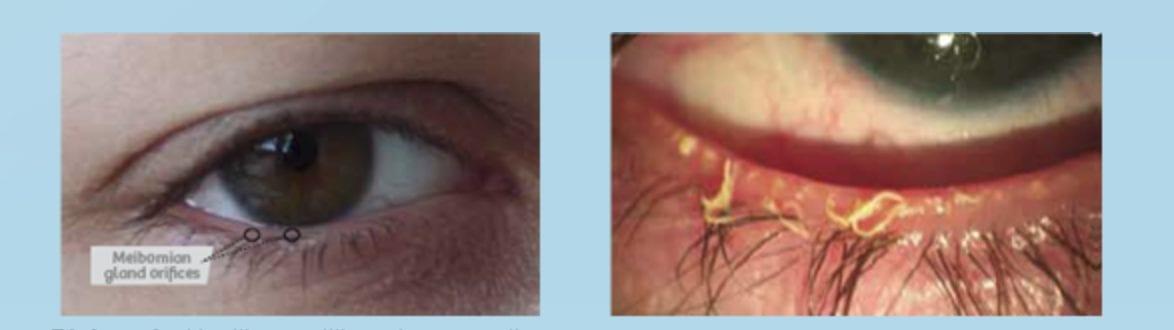 Dry eye treatment Healthy eye vs Dry eye Visual Q Eyecare South Yarra Melbourne Optometrist